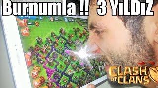 Clash of Clans' ı BURNUMLA Oynadım !!!