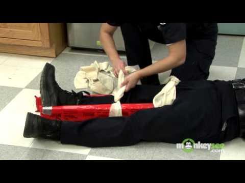 How to Splint a Broken Leg or Ankle