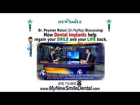 Replacing Missing Teeth with Dental Implants with Nashville, TN dentist Dr. Peyman Raissi