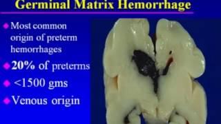 Hypoxic Ischemic Brain Injury in Neonates