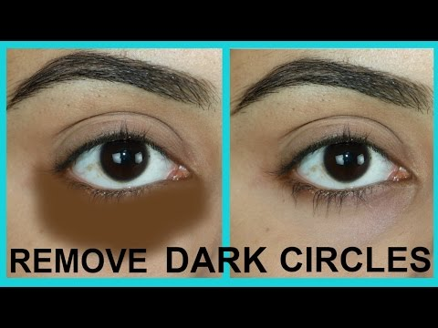 HOW TO REMOVE DARK CIRCLES NATURALLY IN 7 DAYS
