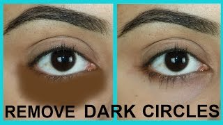100%WORKS | HOW TO REMOVE DARK CIRCLES NATURALLY IN 7 DAYS | TANUTALKS |