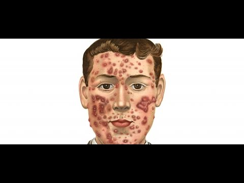 how to cure your acne by eating alkaline foods(change your diet)