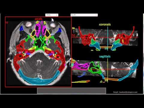 Skull Base Ct And Mr Anatomy Module Tutorial Youtube