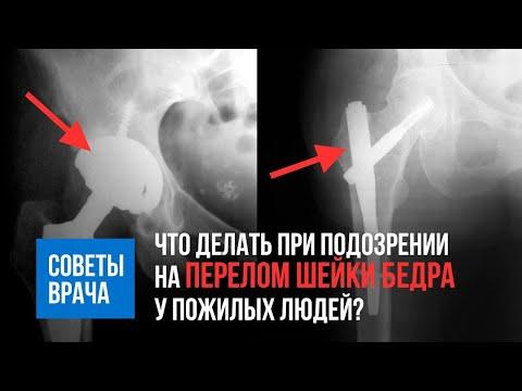 Перелом шейки бедра- ЧТО ДЕЛАТЬ? тактика при подозрении перелома