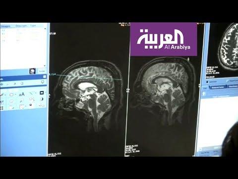 الزهايمر مرض يغير حياة الآلاف من البشر  - 22:53-2018 / 9 / 19