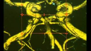 видео Онкологическая нейрохирургия в Германии. Хирургия опухолей головного мозга и основания черепа. Детская нейрохирургия