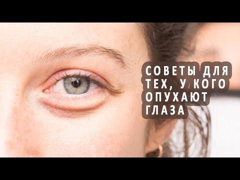 Советы для тех, у кого опухают глаза