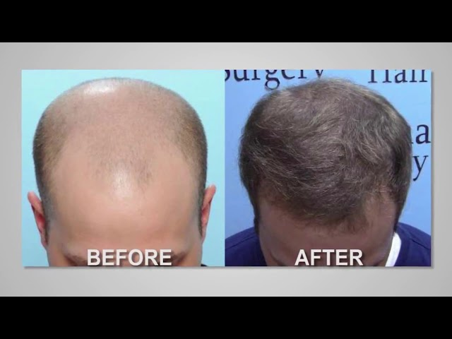 FUE Hair Graft Survival Success   by Dr  Michael Vories of Carolina Hair Surgery