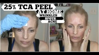 tca peel at home   tca 25   sun damage anti aging and acne