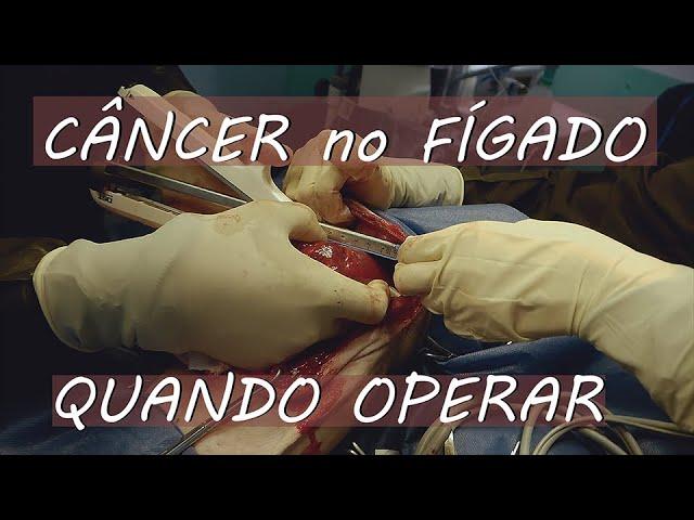 Câncer no fígado: Quando operar.