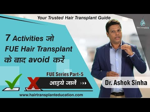 """DO""""S AND DONT""""S AFTER FUE HAIR TRANSPLANT- DR ASHOK SINHA"""