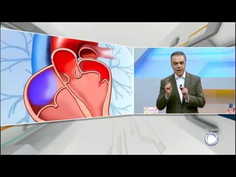 Dr. Sproesser Tira Dúvidas Sobre Problemas Do Coração No Hoje Em Dia