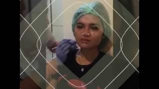 Botox and Threadlift Tecnique by dr. Siska Khairunnisa