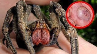 The Most DEVASTATING Spiders in the World!!