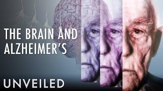 What Happens To The Brain During Alzheimer's?   Unveiled