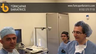 Mide endoskopisini nasıl yapıyoruz.