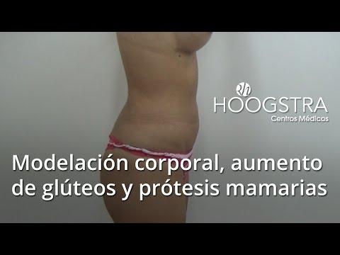 Modelación corporal, aumento de glúteos y prótesis mamarias (15041)