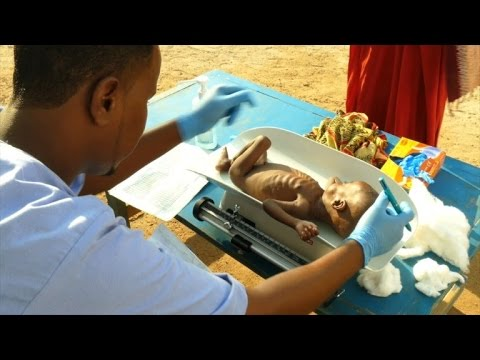Malnutrition at record high in drought-hit Somalia: ICRC