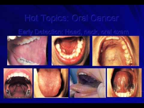 Image result for MOUTH cancer in hindi wikipedia