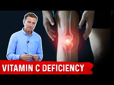 Could Your Joint Pain Be a Vitamin C Deficiency?