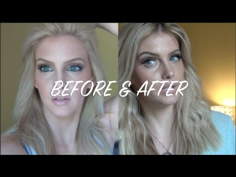 How to get rid of hotbrassy roots youtube pmusecretfo Gallery