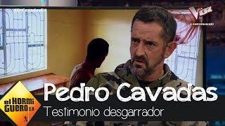 El desgarrador testimonio de Pedro Cavadas - El Hormiguero 3.0