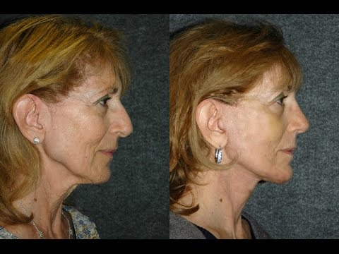 mini-face-lift,-necklift-and-rhinoplasty-3-weeks-after-surgery-|-top-nyc-plastic-surgeon-dr-jacono