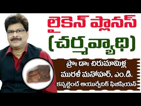Lichen Planus | Ayurvedic Treatment | Prof. Dr. Murali Manohar Chirumamilla, M.D. (Ayurveda)