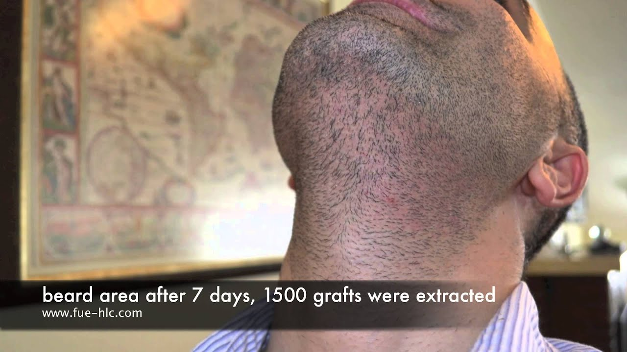 Fue Repair Case With 3500 Grafts Hairline Clinic Ankara Youtube
