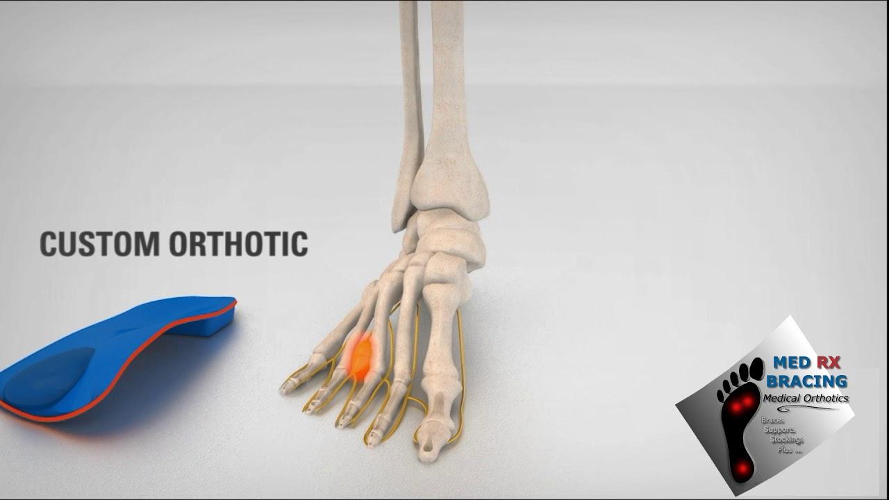 afbab9a459 Custom Orthotics Edmonton | Orthopedic Inserts for Healthy Feet