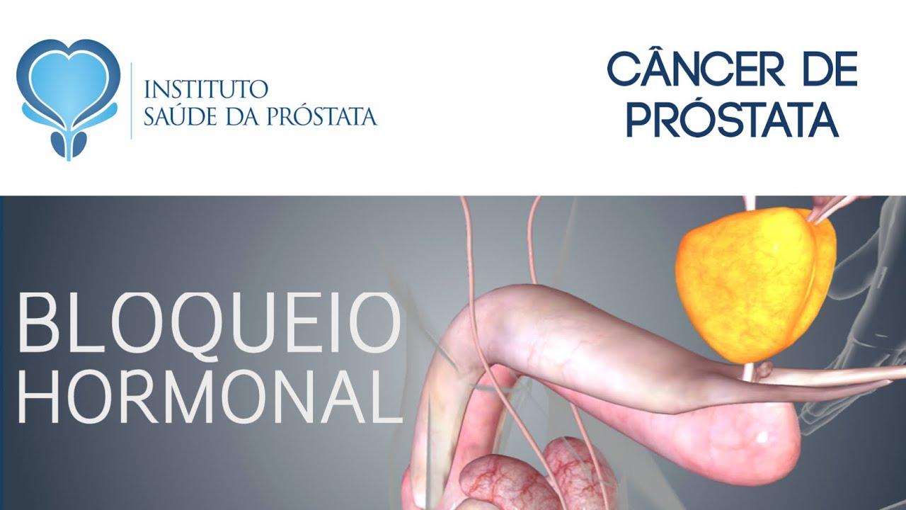 ce este adenomul de prostata tratament