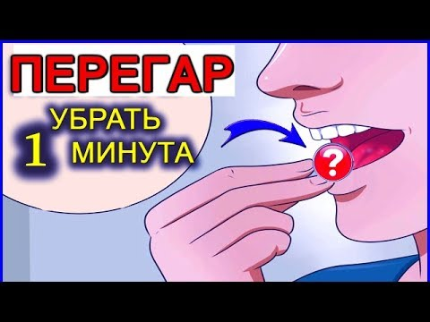 ПЕРЕГАР - КАК БЫСТРО ИЗБАВИТЬСЯ ОТ ЗАПАХА (13 способов)