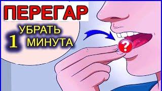 Download ПЕРЕГАР - КАК БЫСТРО ИЗБАВИТЬСЯ ОТ ЗАПАХА (13 способов) Mp3 and Videos