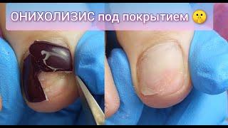 ОНИХОЛИЗИС ПОД ПОКРЫТИЕМ СОРВАЛА НОГОТЬ ПОЧЕМУ НЕЛЬЗЯ ПЕРЕНАШИВАТЬ ПРОТЕЗЫ 腳趾甲 INJURED NAIL