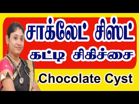 chocolate-cyst-சாக்லேட்-கட்டி-சிஸ்ட்-infertility-treatment-recovery-cost-tamil-coimbatore-tamil