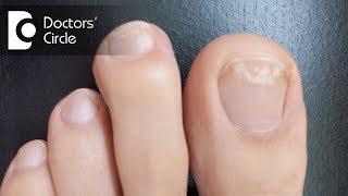 How to manage white spot on toenail? - Dr. Rajdeep Mysore
