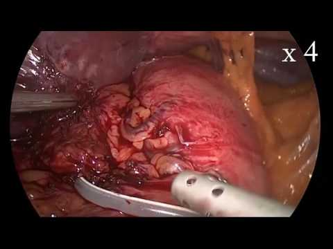 """Sleeve gastrectomy and band extraction. """"UNCUT""""  By: Dr. Yerdel"""