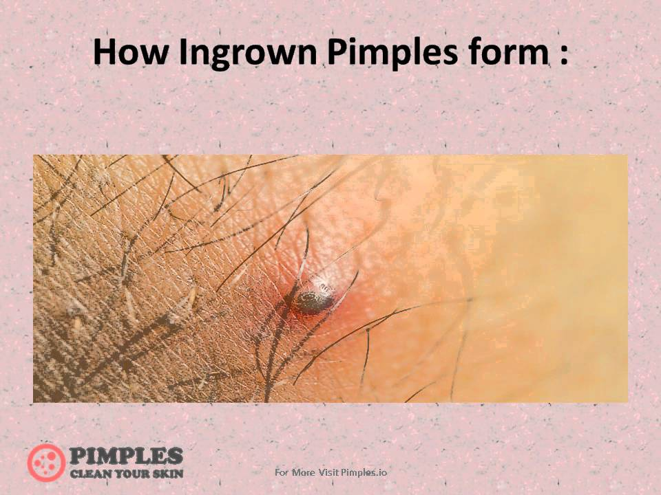 How To Get Rid Of Ingrown Pimple