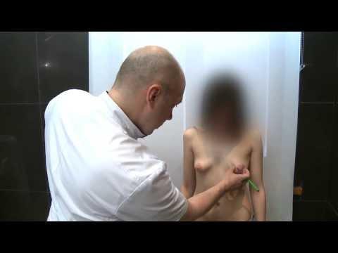 Почему набухает грудь перед месячными?