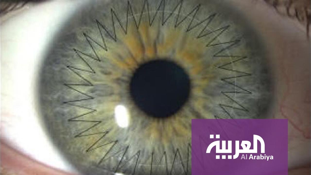9fb59f0f6 صباح العربية: زرع قرنية العين بالليزر في دقائق - YouTube