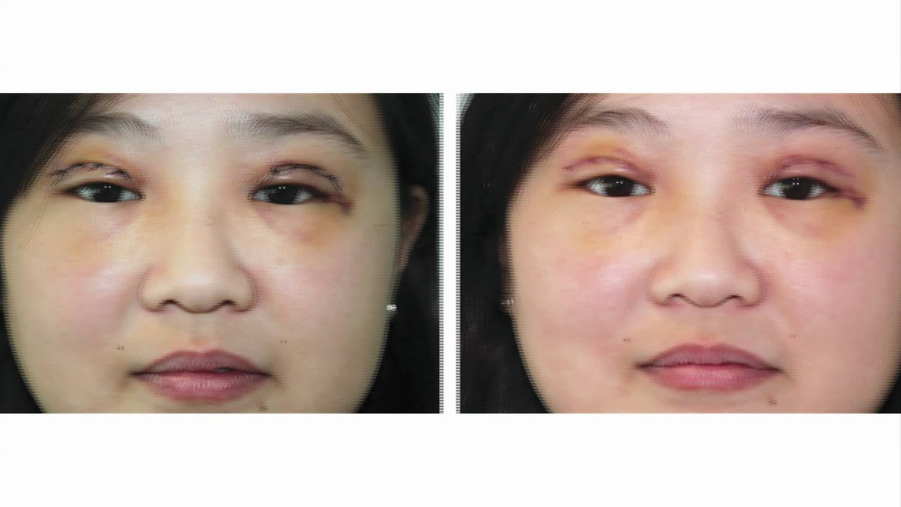 Double Eyelid Surgery along with Epicanthoplasty - YouTube Bad Double Eyelid Surgery