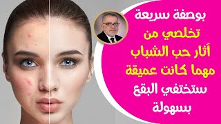 وصفة تبييض البشرة الرائعة والتخلص من حبوب الوجه الملتهبة بشرة أكثر نظافة وناصعة بشكل دائم | حلقـ2ـة