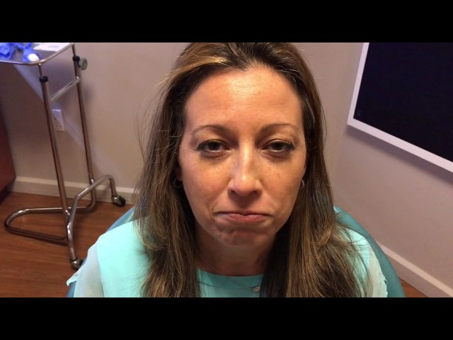 Botox for Gummy Smile Testimonial in Dallas, TX