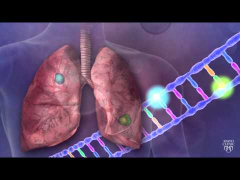 Biomarker Discovery - The smallest changes can help individualize care