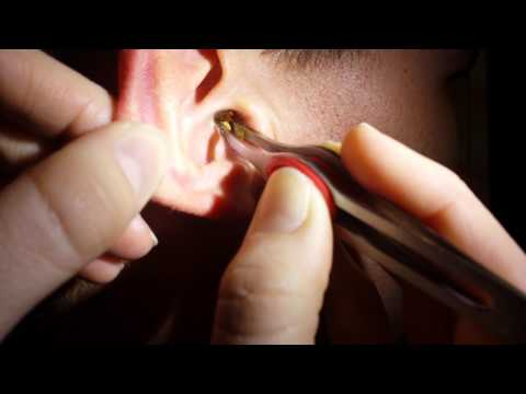 Removing impacted ear wax