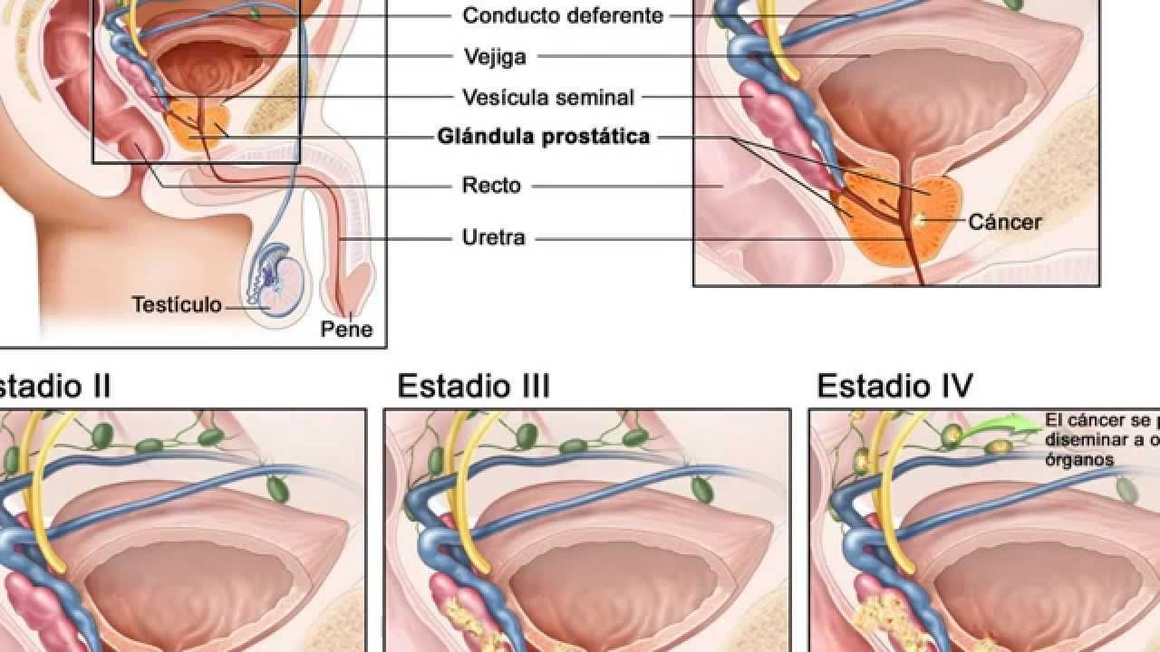 Простатит вылечит анальный секс форум средства от простатита