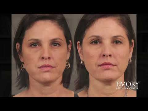 dermal fillers Archives - Cosmetic Medicine Cosmetic Medicine