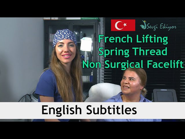French Lifting  -  Spring Thread - Non Surgical Facelift
