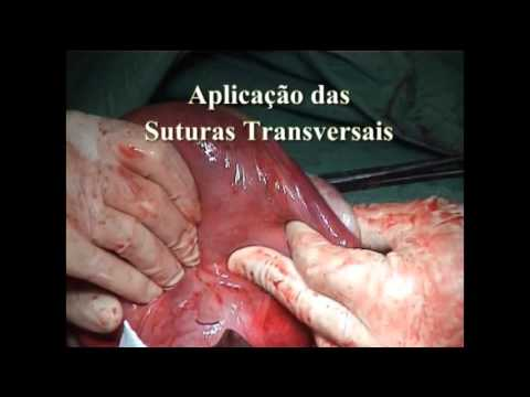 compressive sutures